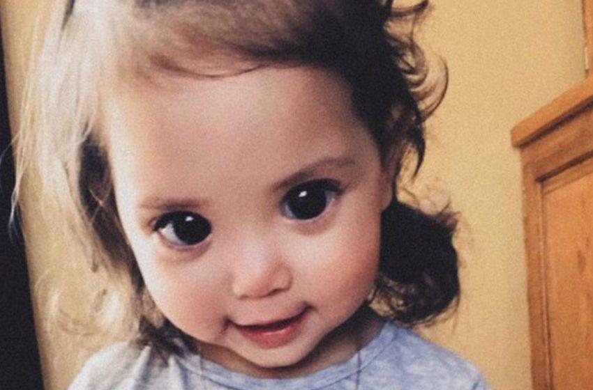 Как живётся девочке с огромными глазами